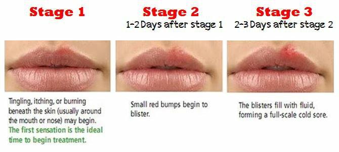 genital herpes beginning stage